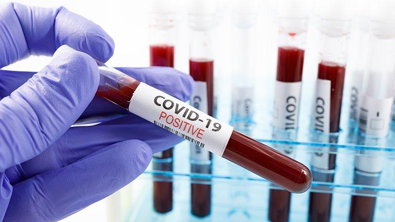वीरगञ्जको नारायणी अस्पतालमा थप २९ जनामा कोरोना संक्रमण पुष्टि